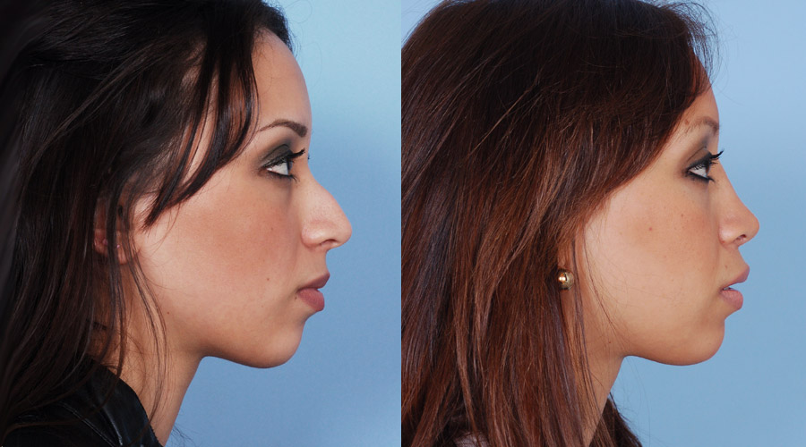 Before After Rhinoplasty Nose Jobs Photo Gallery